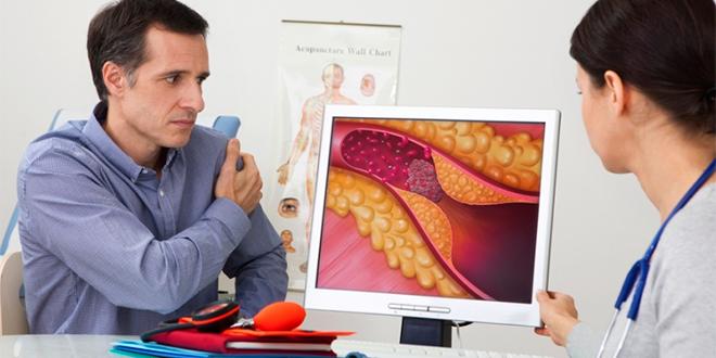 5 consejos para controlar su colesterol