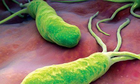 Recomiendan incluir test alternativo en canasta GES para problemas de helicobacter pylori